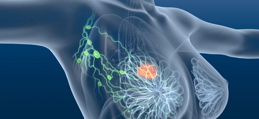 Verso un nuovo farmaco contro il carcinoma della mammella